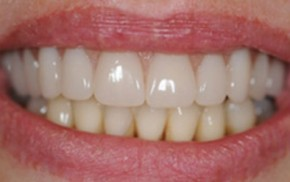 Gražūs dantys dėka Prodentum